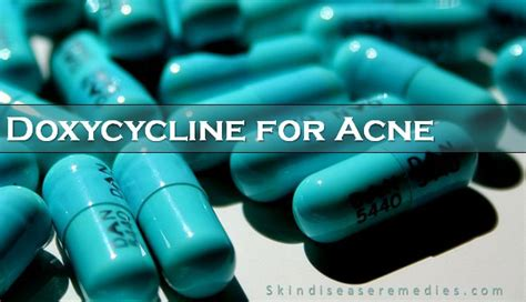 How to Use Doxycycline for Acne - Skin Disease Remedies