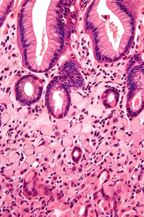 Signet ring cell carcinoma - Wikipedia